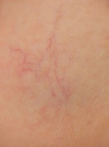 Before Thread Vein Treatment
