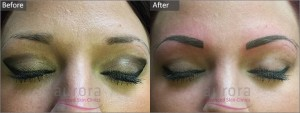 Aurora Skin Clinics: Before and After Photograph of Semi-Permanent Make-Up