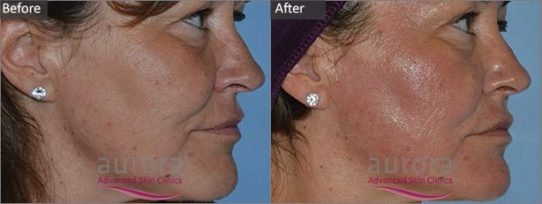 Aurora Skin Clinics: Photo showing Before and After a Dermaroller Treatment