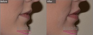 Aurora Skin Clinics: Photo showing Before and After Lip Filler