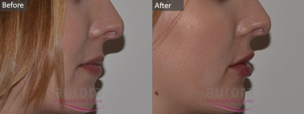 Before & After Photo of Lip Filler
