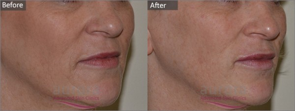 Before & After Photo of Cheek Fillers