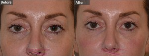 Aurora Skin Clinics: Photo showing before and after photograph of tear trough filler
