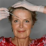 Aurora Skin Clinics: Photo showing Botox Injections