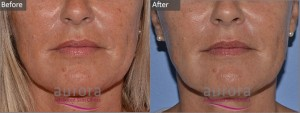 Aurora Skin Clinics: Before and After Microdermabrasion