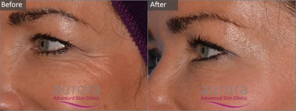 Aurora Skin Clinics: Botox before and after treatment
