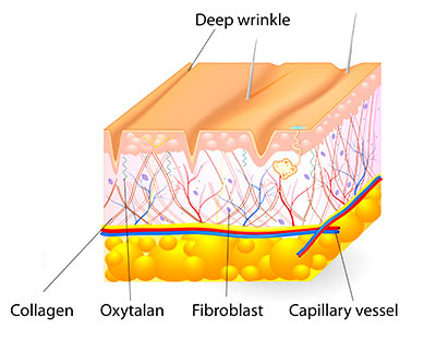 Aurora Skin Clinics: Photo showing diagram of skin