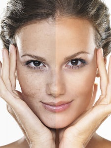 Aurora Skin Clinics: Photo showing SPF Moisturisers