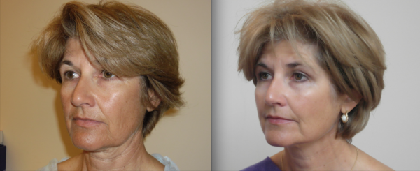 Female patient showing improvement to lower face sagging after treatment with Silhouette Soft thread lift