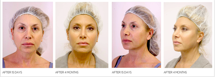 Female patient before and after Silhouette Soft thread lift