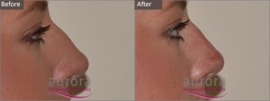 Aurora Skin Clinics: Photo showing Before and After Non-Surgical Rhinoplasty