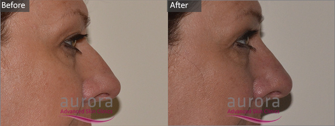 Aurora Skin Clinics: Photo showing Before & After Non-Surgical Nose Job