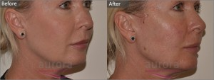 Aurora Skin Clinics: Before and After Photos of Silhouette Soft Thread Lift