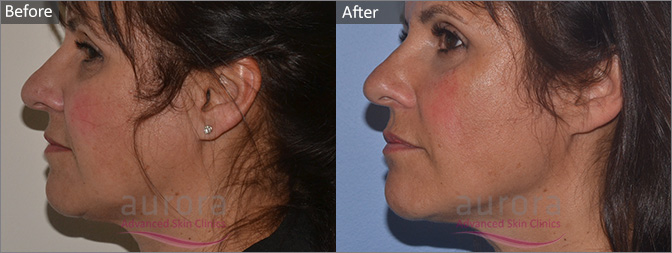 Before and After Photos of Silhouette Soft Thread Lift - Aurora Skin