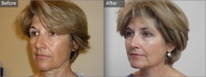 Aurora Skin Clinics: Photo showing Before and After Silhouette Soft Thread Lift