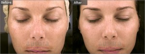 This patient suffered from hyperpigmentation which was effectively treated with a Jessners Peel