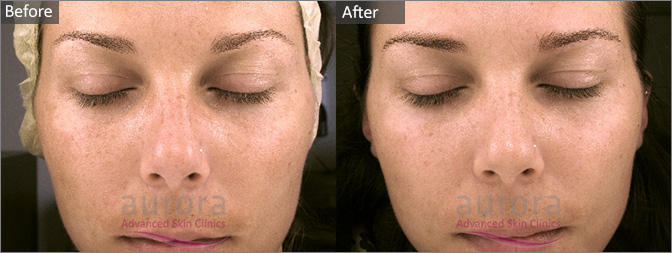 Facial Skin Tightening Jessner Peel