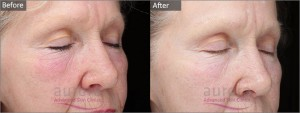 This patient suffered from fine lines and winkles which were improved with a Mandelic Acid Peel