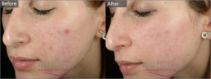 This patient suffered from mild acne which was effectively treated with a Salicylic Acid Peel