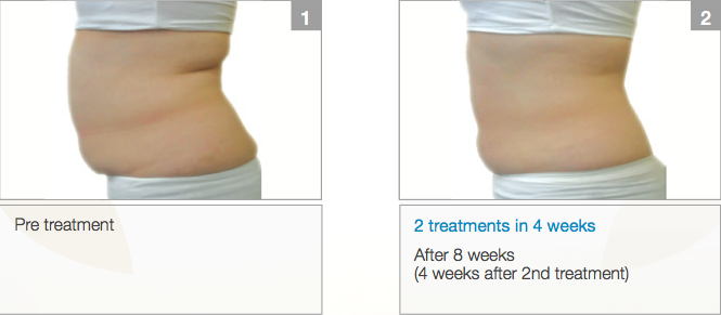 Aurora Skin Clinics: Photo showing patient before and after fat freezing treatment