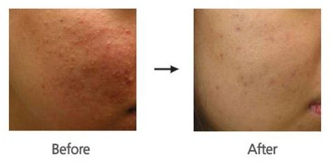 Derma FNS Before and After Image - Aurora Skin Clinics