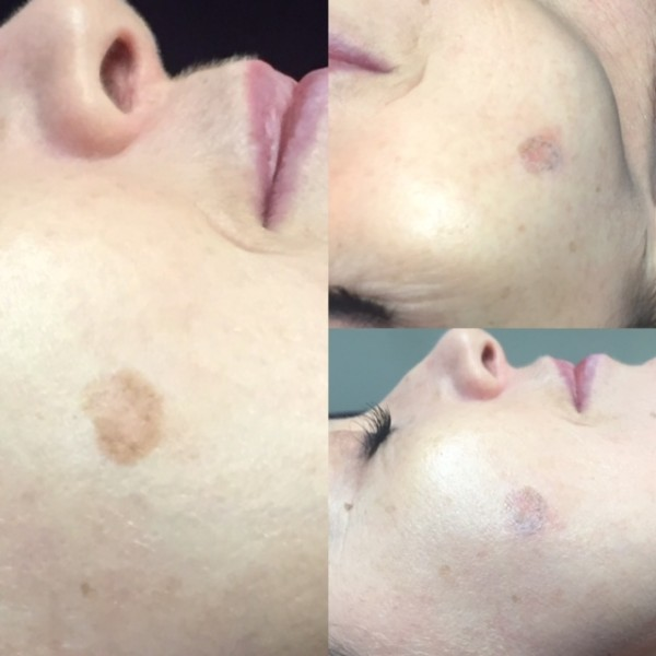 after-1st-treatment-aurora-skin-clinic