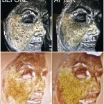 pigmentation-damage-before-after-aurora-skin-clinic-web