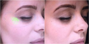 blog-after-eyes-aurora-skin-clinics-web