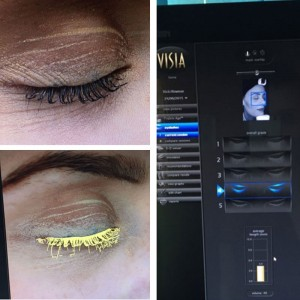 blog-vicki-lashes-before-aurora-skin-clinics-web
