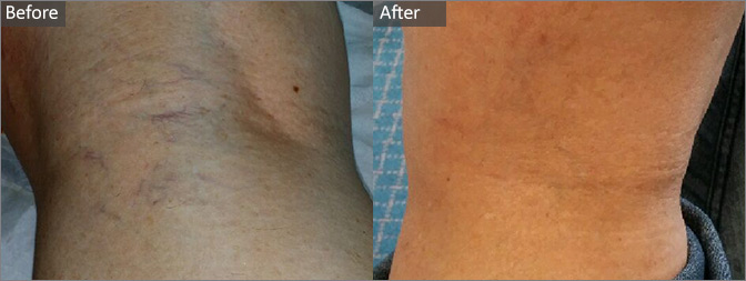 Aurora Skin Clinics: Before & After Photo of Leg Thread Vein Removal