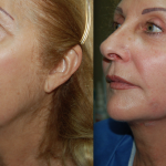 Female patient in profile before and after Silhouette Soft lift