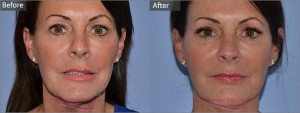Aurora Skin Clinics: Photo showing Before & After 8 Point Facelift