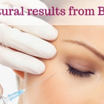 Aurora Skin Clinics, Banner showinghow you can acheive natural results with Botox Blog